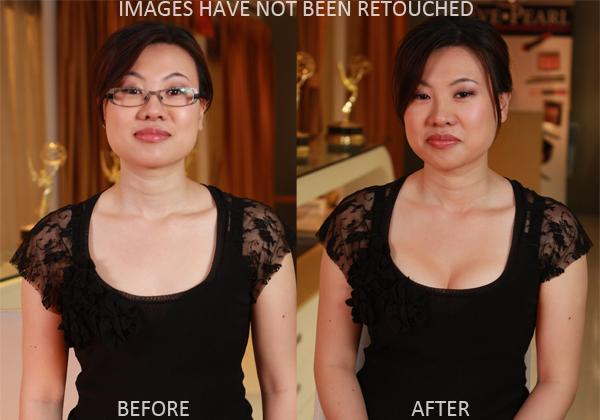 2011-06-14-BreastBeforeAfter